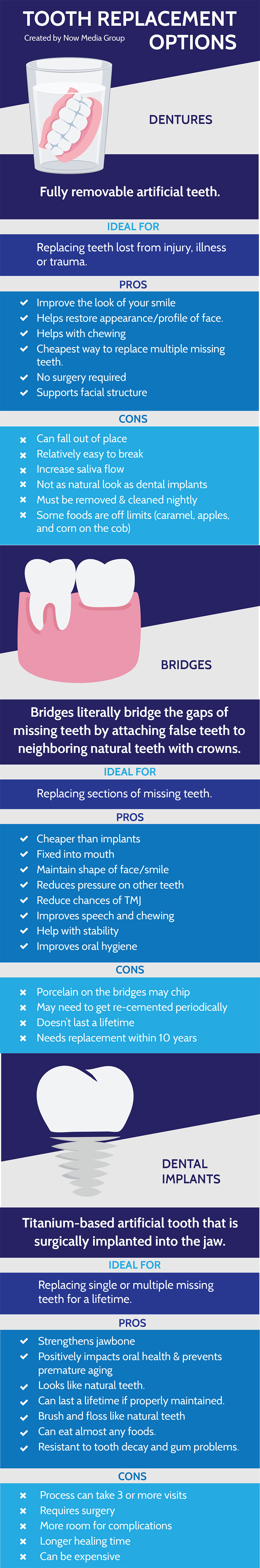 Tooth replacement options compared