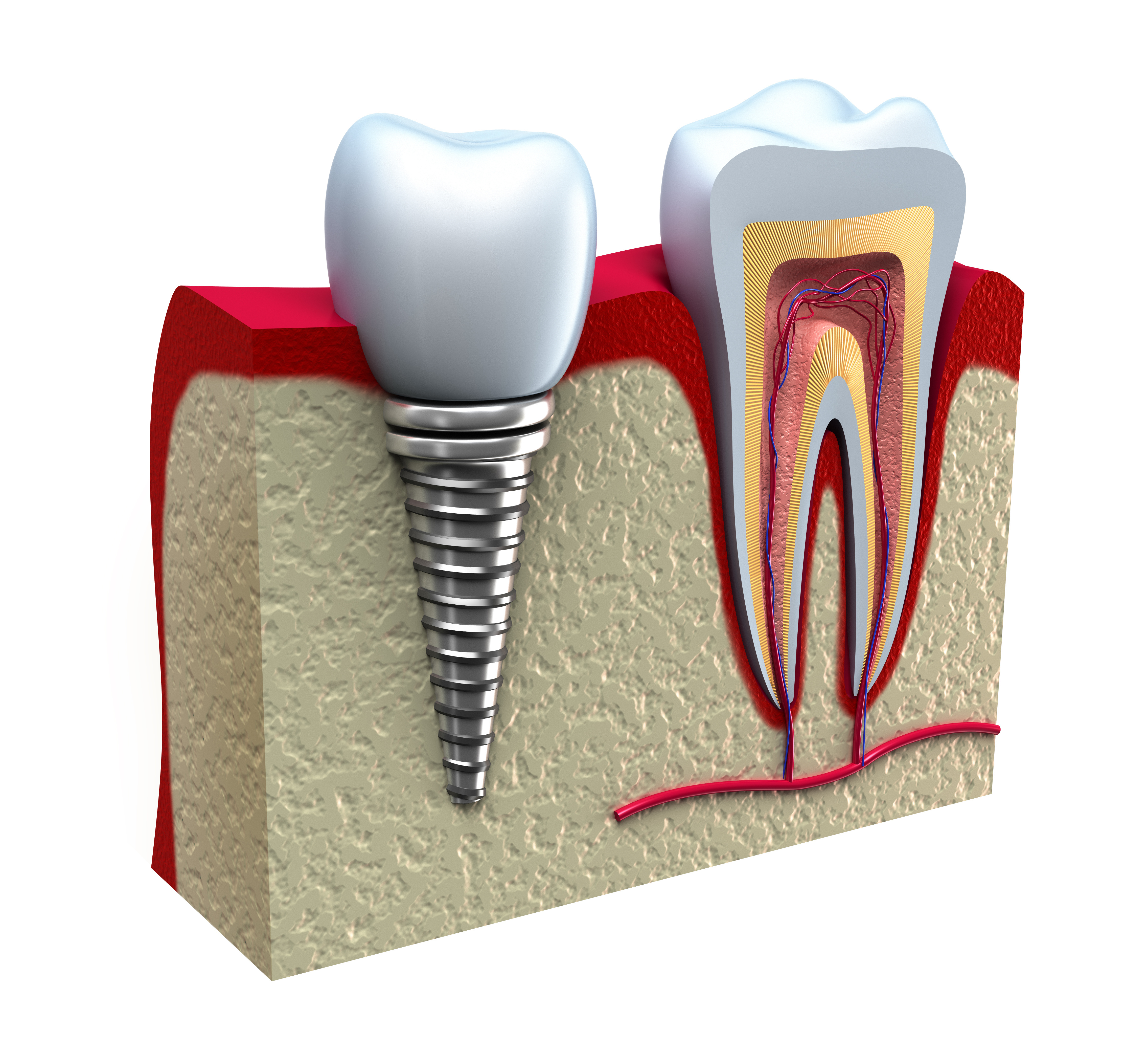 Anatomy of healthy teeth and dental implant in jaw bone. - Keith ...